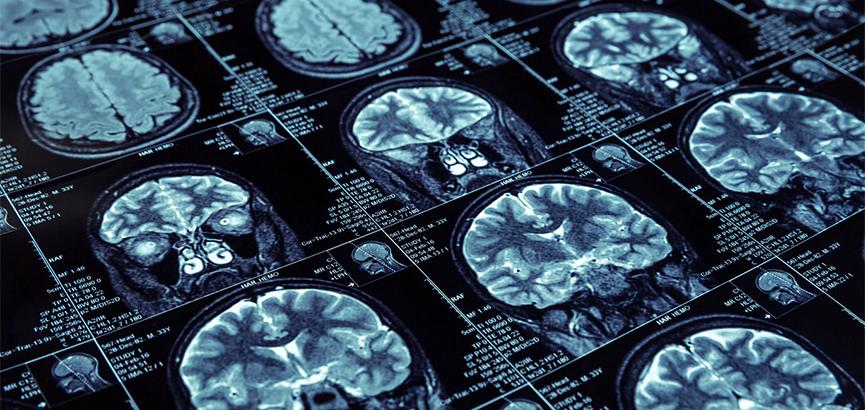 Snaga mozga varira od sezone do sezone, svoj vrhunac ima početkom jeseni, a dno zimi