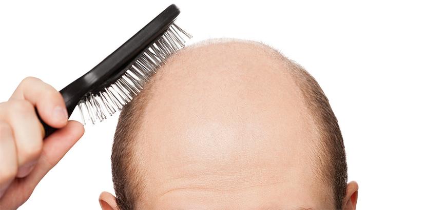 Muškarci koji rade prekovremeno skloniji su gubitku kose