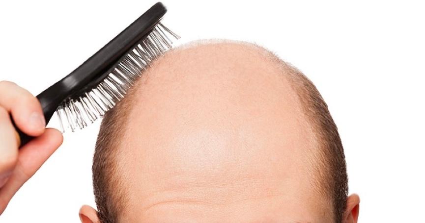 Ovo tvrde znanstvenici: Muškarci koji rade prekovremeno skloniji su gubitku kose