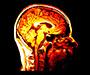 Istraživači mogu pronaći najskrivenije tajne skenirajući mozak